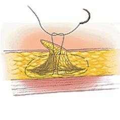 골육종MRI